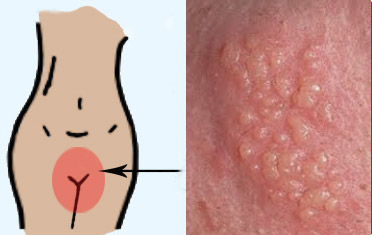 genital herpes in Woman