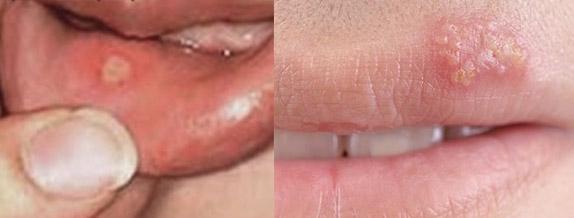 oral herpes